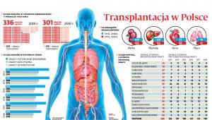 Transplantacja w Polsce